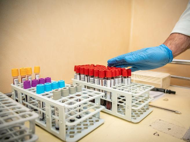 Coronavirus Lombardia, 402 nuovi positivi su oltre 19 mila t